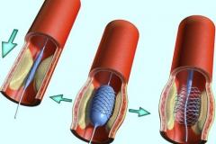Установка стента в просвет коронарной артерии