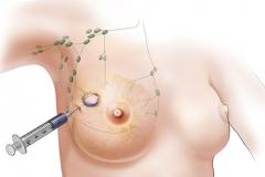 Пункция молочной железы под УЗИ-контролем