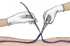 Механическое удаление вены