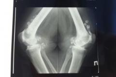 Рентгенологическая картина артроза