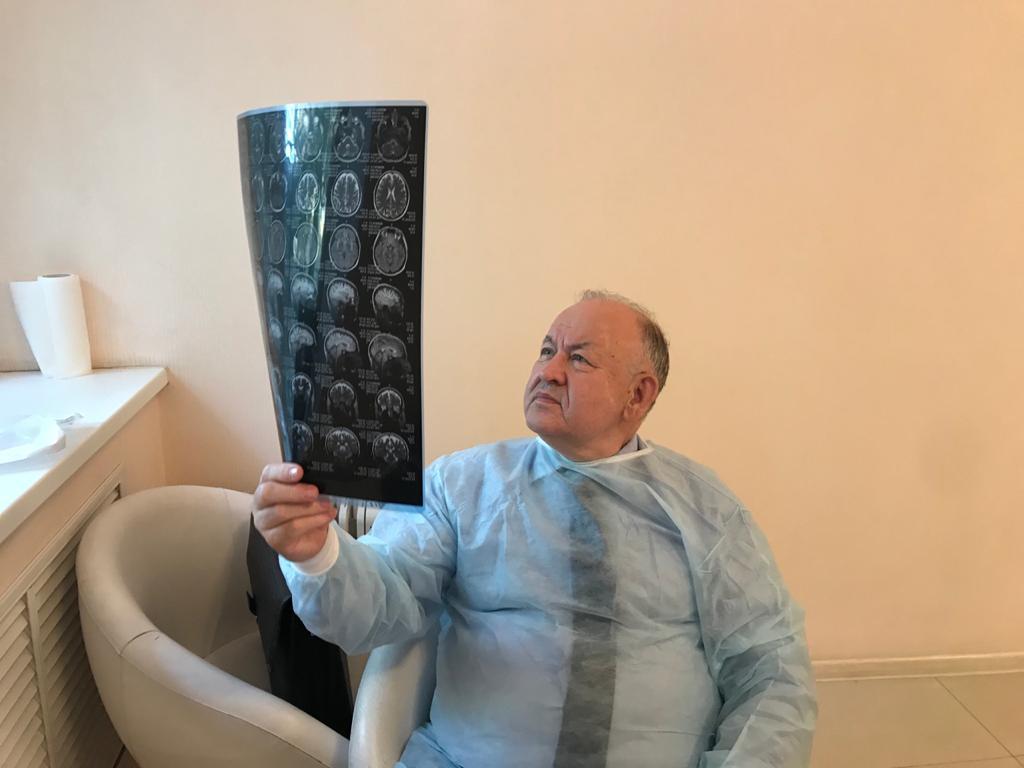 тринитатский рассеяный склероз
