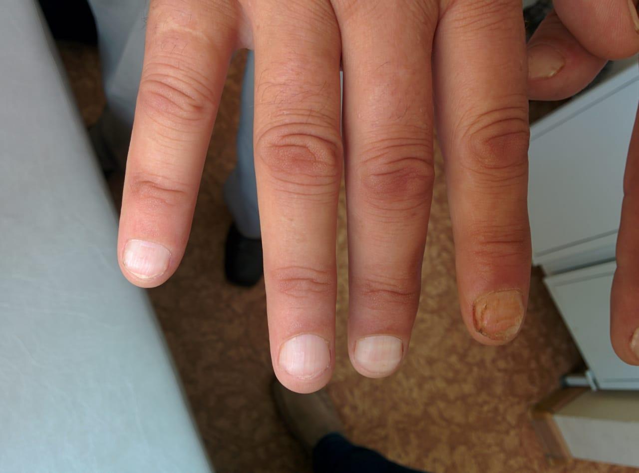 Котянков грибок ногтей