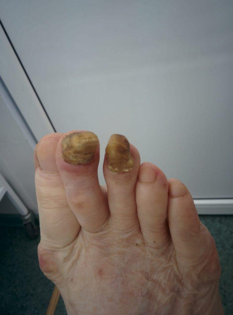 грибок ногтей лечить в ростове